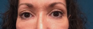 Manhattan BLEPHAROPLASTY Before 6
